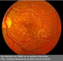 Ojo afectado por DMAE, degeneración macular asociada a la edad, en estado intermedio