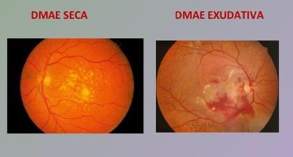 Detalle de DMAE, degeneración macular asociada a la edad, seca y exudativa